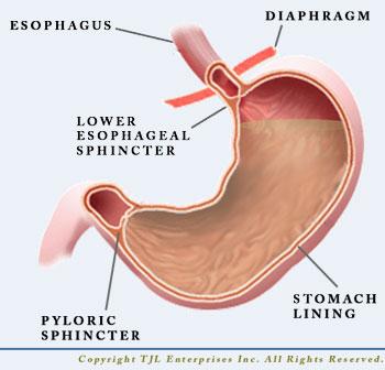 De zure maaginhoud bereikt bijna de sluitspier en kan reflux veroorzaken